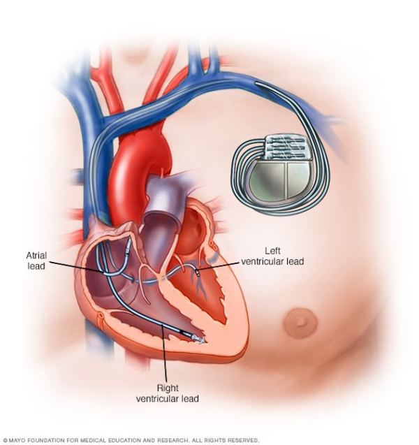 Pacemaker - Mayo Clinic