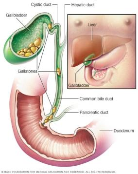 gallbladder graphic