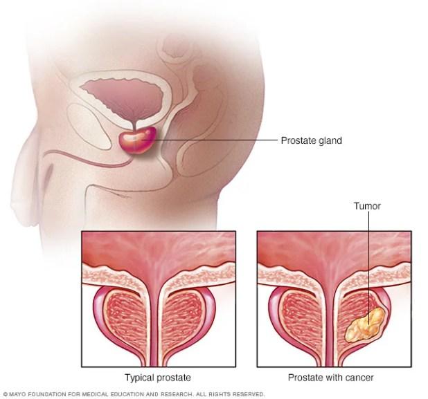 Comparación entre una próstata normal y una con tumor