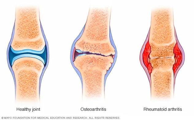 Illustration comparing rheumatoid arthritis and osteoarthritis