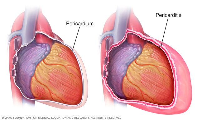 Pericarditis - Symptoms and causes - Mayo Clinic