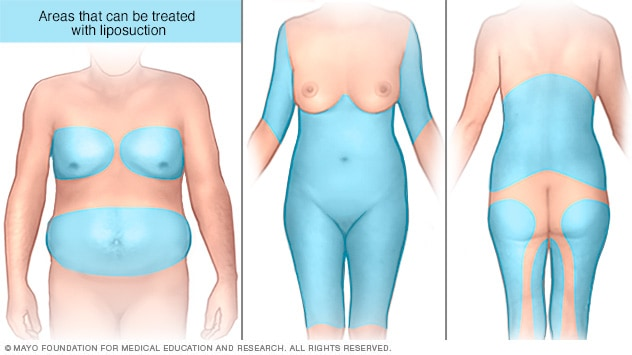 Areas on the abdomen, chest, back, legs and arms that can be treated with liposuction