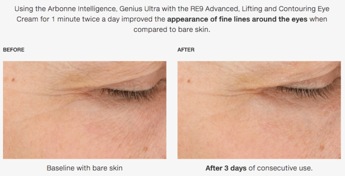 Arbonne Genius Ultra Before & After