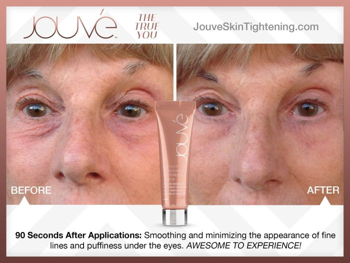 Jouvé before and after