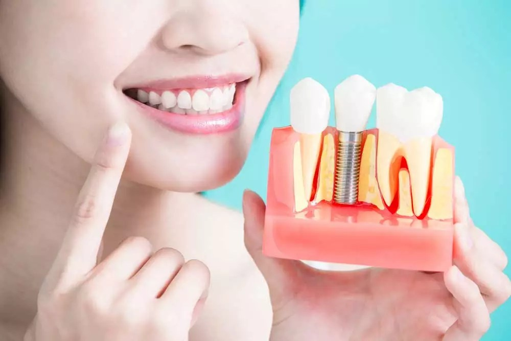 a dental patient holding up a model of a placed dental implant