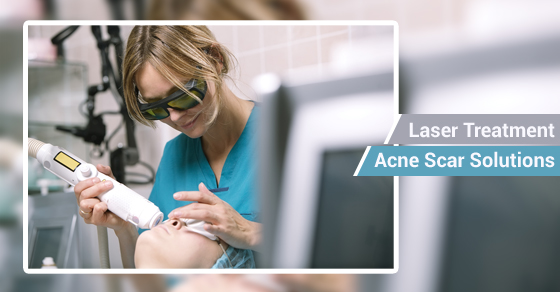 Laser Treatment & Acne Scars