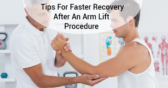 Tips For Faster Recovery After An Arm Lift Procedure