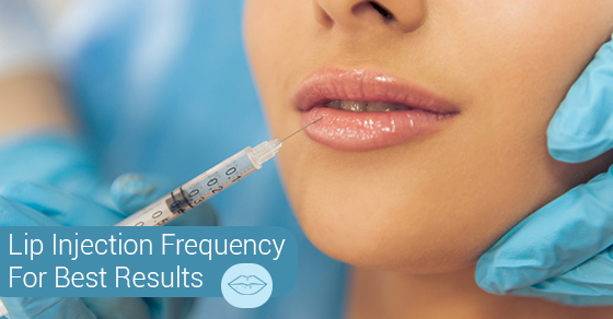Lip Injection Frequency For Best Results