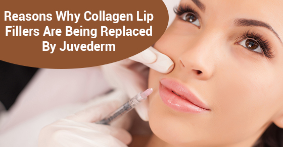 Reasons Why Collagen Lip Fillers Are Being Replaced By Juvederm