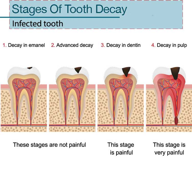 Root Canal General Dentist Chattanooga, TN