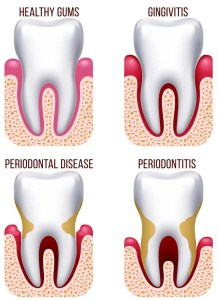 Gum Disease Treatment Brisbane