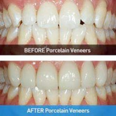 porcelain veneers 2