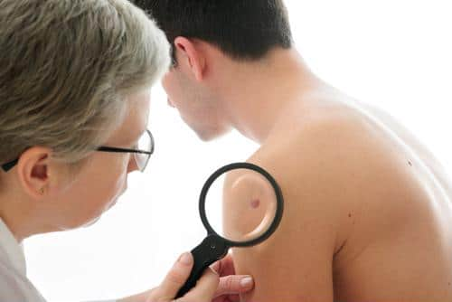 Learn how to check for cancerous moles this summer.