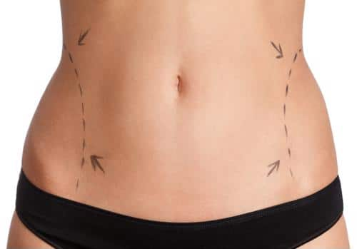 Let's take a closer look at the difference between both fat-reducing cosmetic treatments.