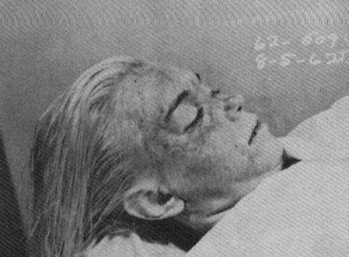 Fotos de mortos que marcaram a história