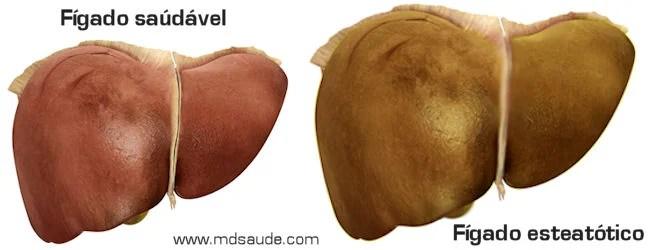 Fígado saudável x fígado com esteatose hepática