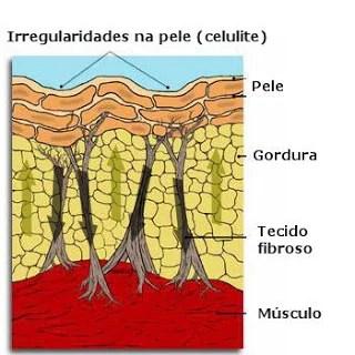 Como surge a celulite