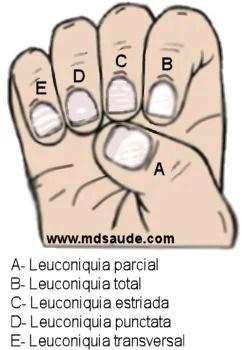 Tipos de leuconíquia