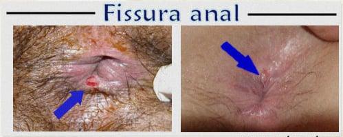 Fissura anal