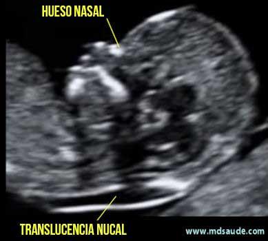 Transluscencia nucal