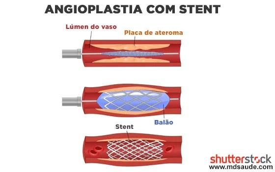 Angioplastia com stent da carótida