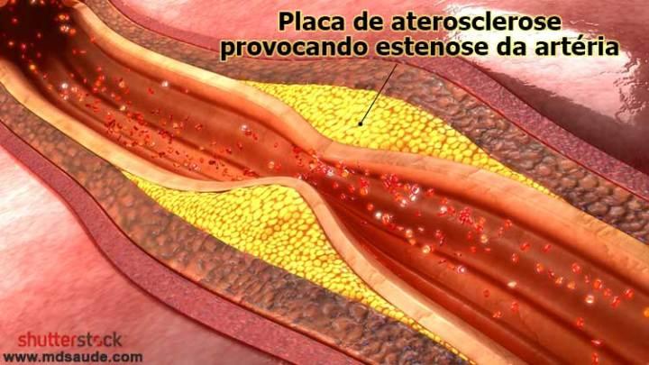 Placas de aterosclerose provocando estenose da carótida.