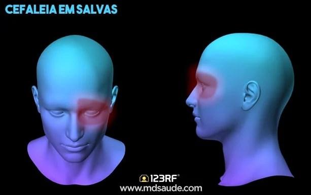 características da cefaleia em salvas