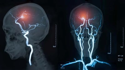 Estenose da artéria carótida