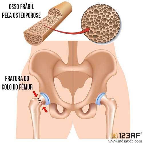 Fratura do colo do fêmur