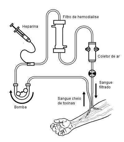 Como funciona a hemodiálise