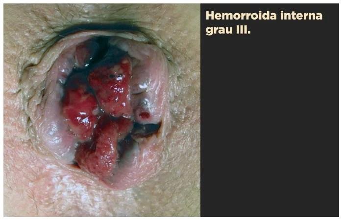 Hemorroida interna grau III