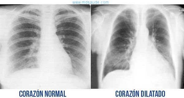 insuficiencia-cardiaca-rx