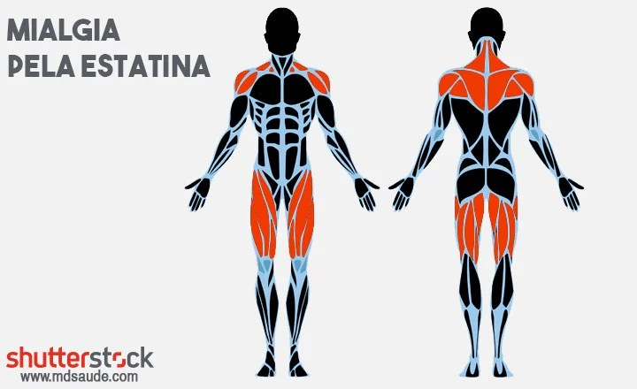 Dor muscular provocada pelas estatinas
