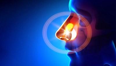 Pólipo nasal