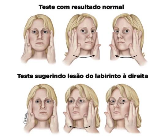 Teste do impulso cefálico - diagnóstico da labirintite