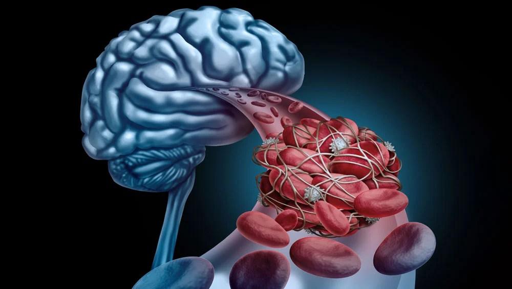 trombose venosa cerebral sintomas e
