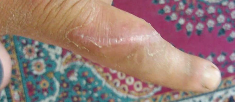 Cum gestionezi o plaga prin taiere cu lipsă de substanță ?9