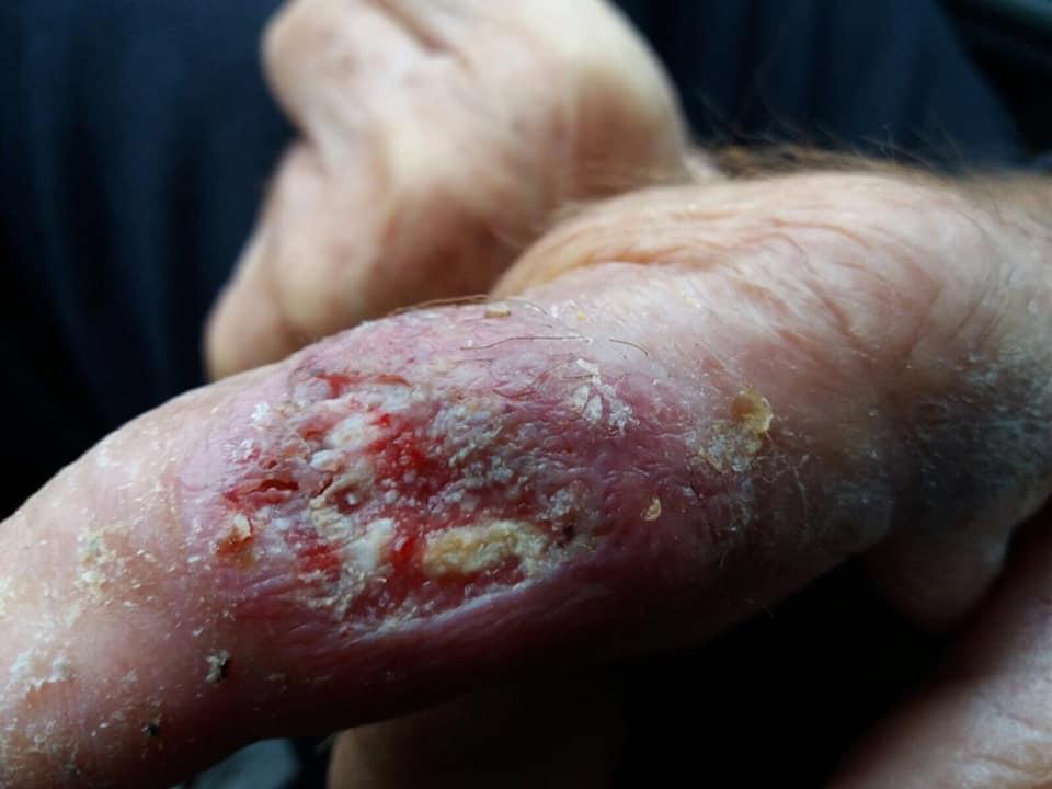 Bazandu-te DOAR pe inspectia plagii si mainii ce poti spune despre aceasta ?1