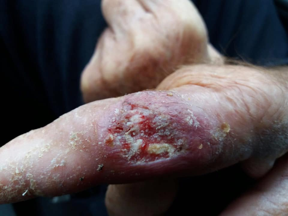 Bazandu-te DOAR pe inspectia plagii si mainii ce poti spune despre aceasta ?3