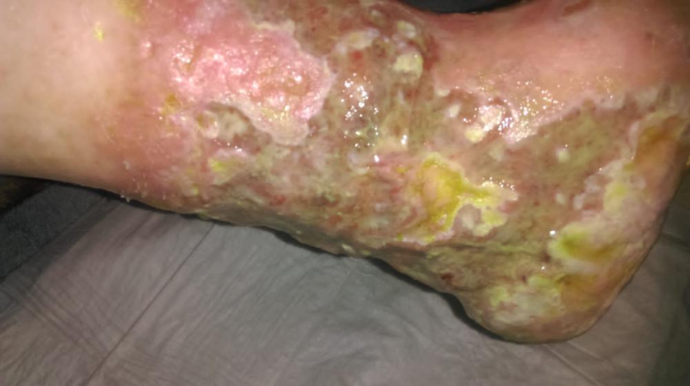 Cum si de unde se poate contamina o plaga cu Providencia Stuartii?1