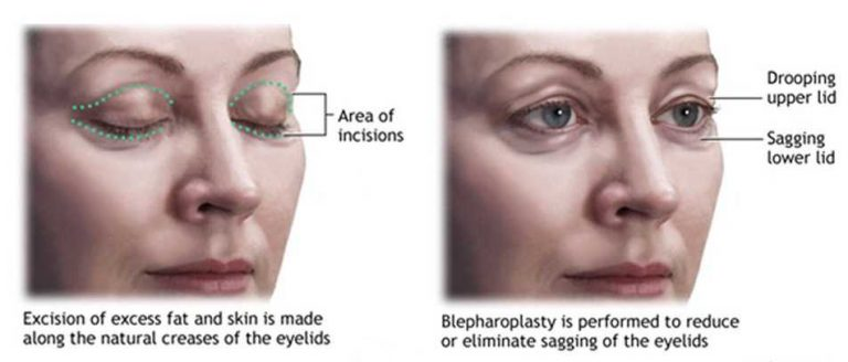 Eyelid Surgery - Upper & Eyelid Surgery 75% OFF in Turkey | MedAway