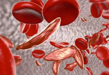 Thalassemia: Symptoms, Causes and Prevention