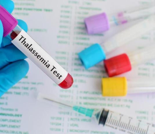 Thalassemia: Types, Diagnosis and Treatment