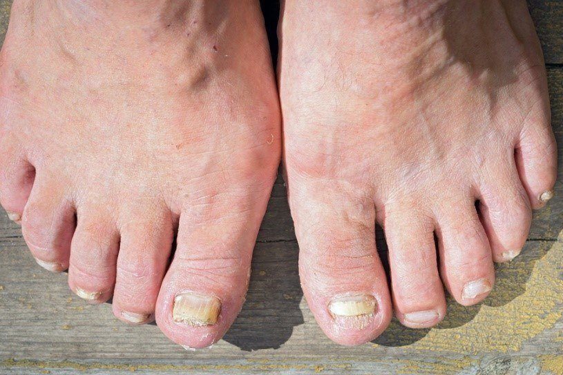 8 Must Try Remedies To Get Rid of Toenail Fungus - MedClique
