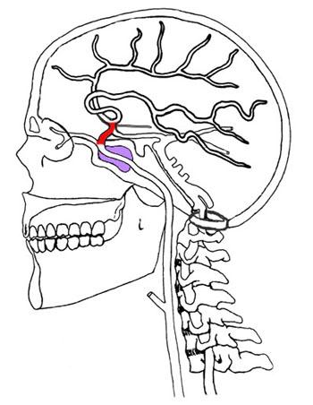 Cervical Carotid
