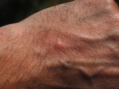 Remèdes face aux piqûres de moustique