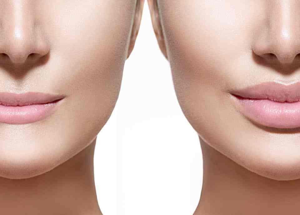 Augmentation joues et pommettes sans chirurgie Tunisie