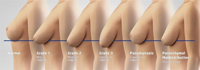 grades-ptose-mammaire