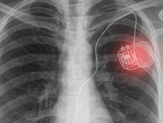 Micro-LEDs and Solar Panels Wirelessly Power Medical Implants 2
