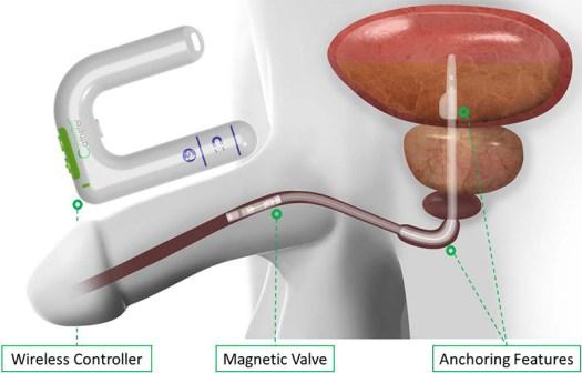 Wireless Smart Catheter for Bladder Control: Interview with Matt Monarski, CEO of UroDev Medical 8